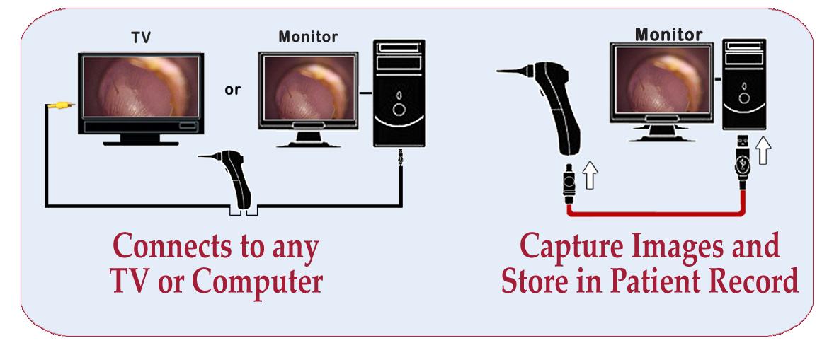Wired Video Otoscope