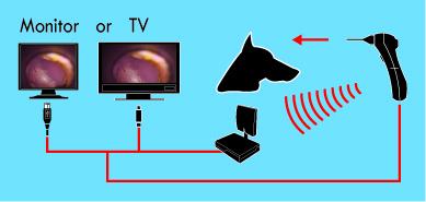 Wiredless digital Video Otoscope