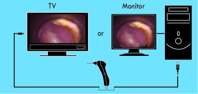 Wired digital Video Otoscope